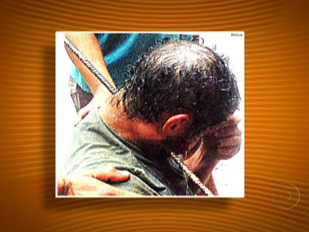 Operário teve o pescoço perfurado por um vergalhão (Foto: Reprodução/TV Globo)