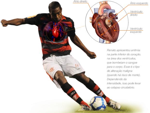 info coração renato abreu (Foto: arte esporte)