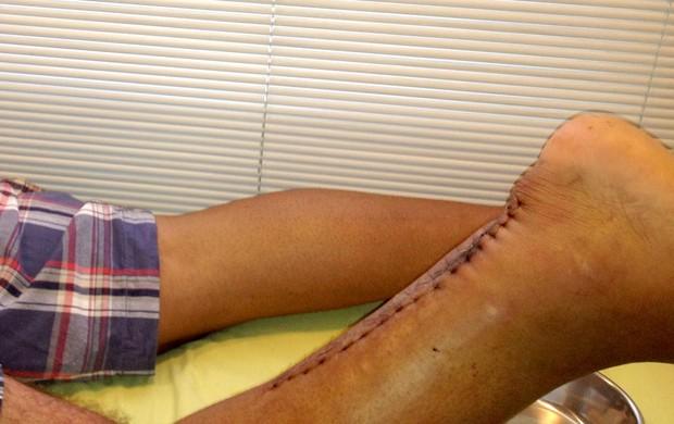 cicatriz Adriano (Foto: Divulgação)