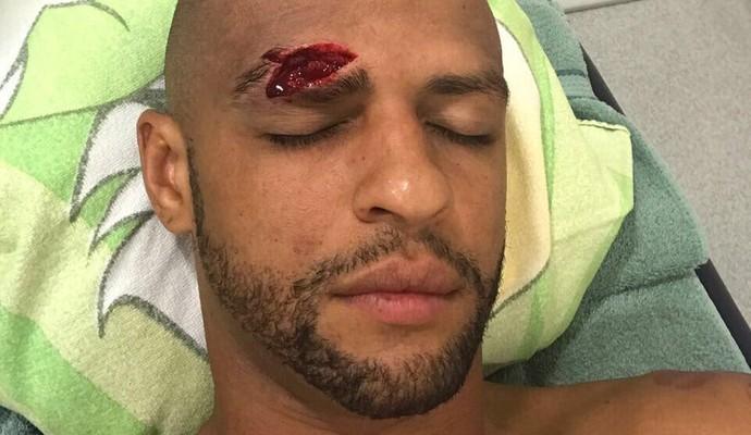 Felipe Melo Palmeiras corte supercílio (Foto: Reprodução/Twitter)