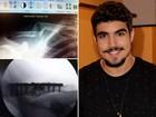 Caio Castro mostra radiografia de antes e depois da cirurgia: 'Foi um susto'