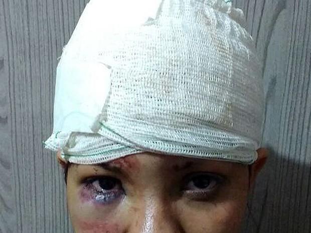 Jovem espancada por ex e mais duas mulheres em Capivari (Foto: Arquivo pessoal)