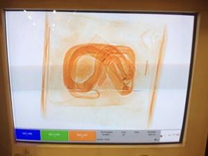 Aparelho de raio-X dos detectou o rétpil (Foto: Ibama/Divulgação)