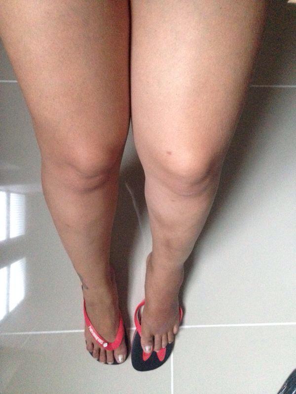 Mulher Maçã divulga fotos após acidente  (Foto: Divulgação/MF Models Assessoria)