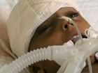 A batalha pela vida de menina de 6 anos em meio à guerra civil do Iêmen