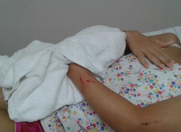 Ferimentos causados em Lídia, 9 anos (Foto: Acervo pessoal)