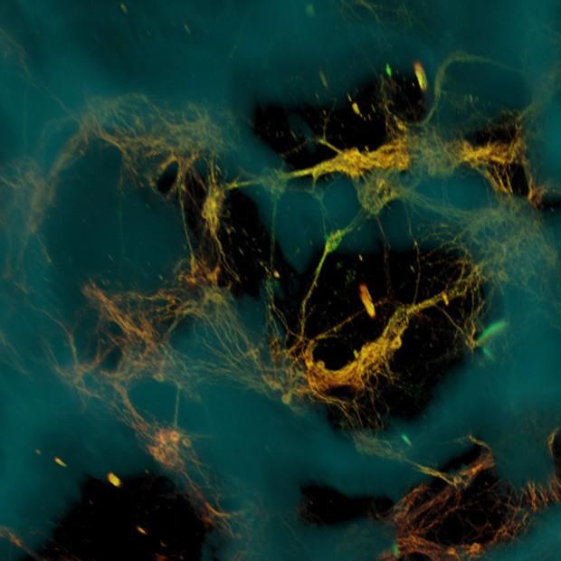 Imagem de microscópio mostra neurônios (amarelo-esverdeados) ligados a uma estrutura feita com proteína de seda (azul); neurônios formaram redes funcionais pelos poros da estrutura (áreas escuras)  (Foto: Tufts University/Divulgação)