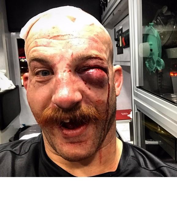 """BLOG: Cummins se orgulha de  """"olho fechado"""" e posta selfie de dentro da  ambulância"""