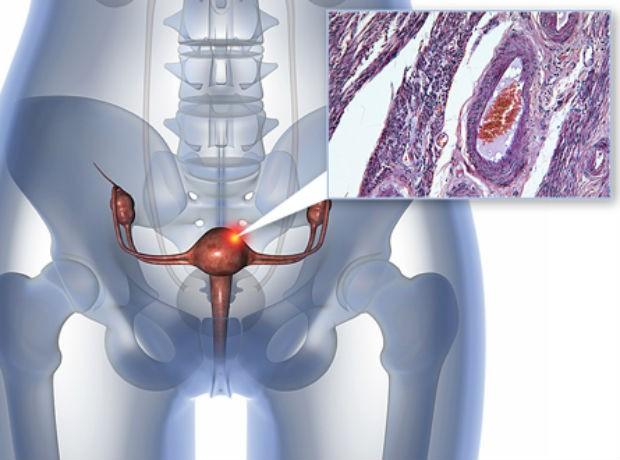 Câncer de endométrio (Foto: Divulgação/Universidade de Yale)