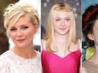 Inspire-se nas famosas e aposte em acessórios para o cabelo