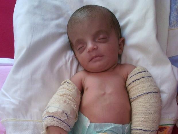 Bebê com um mês de vida nasceu com os ossos de vidro e precisa de tratamento por toda a vida em Brasília (Foto: Arquivo Pessoal/Kelly Renata)