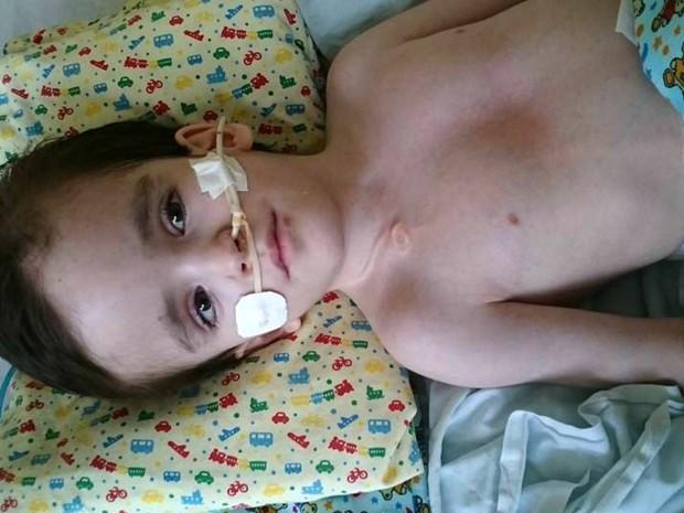 Vitor Andrade de 11anos, portador de hidrocefalia com sonal nasoentérica (Foto: Arquivo Pessoal)