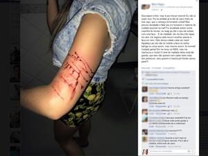Estudante de 24 anos foi esfaqueada no braço durante assalto no Recreio (Foto: Reprodução/Facebook)