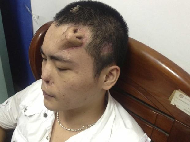Paciente identificado com Xiaolian, 22 anos, é visto com 'nariz' moldado com tecido implantado na cabeça, em hospital de Fuzhou, China. Ele sofreu infecção que corroeu a cartilagem do nariz após um acidente, e se prepara para o transplante do novo órgão. (Foto: Reuters/Stringer)