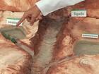 Comer muita gordura aumenta o risco de aparecer pedra na vesícula