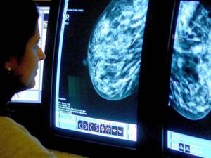 Exames de diagnóstico, como a mamografia, ajudam a detectar doença de forma precoce. (Foto: PA/BBC)