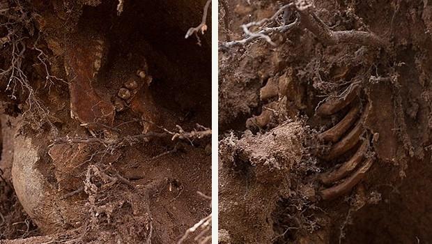 O crânio, à esquerda, e as costelas, à direita, encontradas em meio às raízes da árvore (Foto: Thomas MacMillan/New Haven Independent)