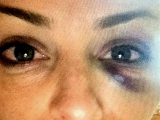 À época da agressão, Tatiana divulgou na internet uma foto da agressão  (Foto: Arquivo pessoal )