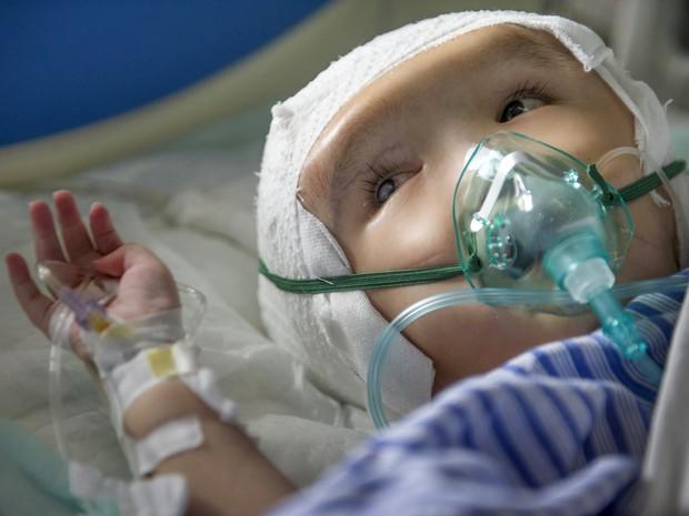 Hanhan, de três anos, passa bem depois da cirurgia de implante de peças de titânio em seu crânio (Foto: Stringer/Reuters)