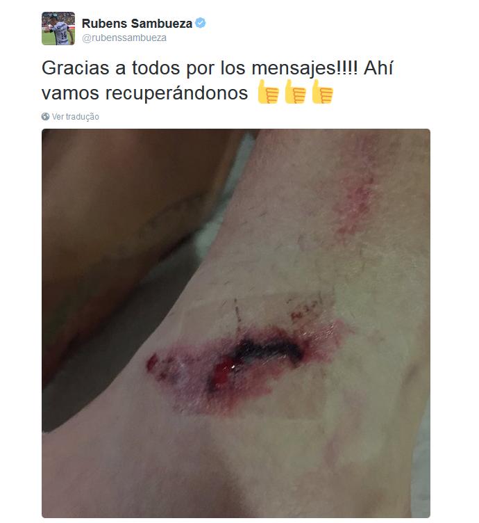 BLOG: Ex-Fla leva carrinho duro no Mexicano e mostra hematoma em rede social