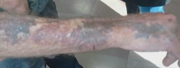Marcas das algemas em braço de idoso preso por delegada em Gravataí, no RS (Foto: Reprodução/RBS TV)