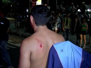 Jovem fica ferido por bala de borracha (Foto: TV Verdes Mares/Reprodução)