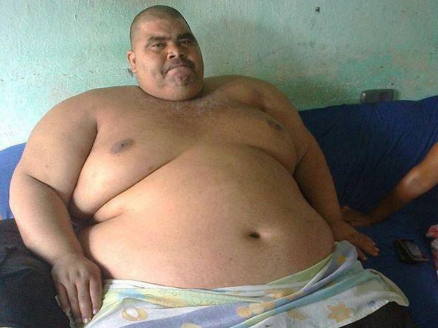 Alex diz que engordou 140 quilos em 10 anos (Foto: Edmundo Fiscal / Divulgação)