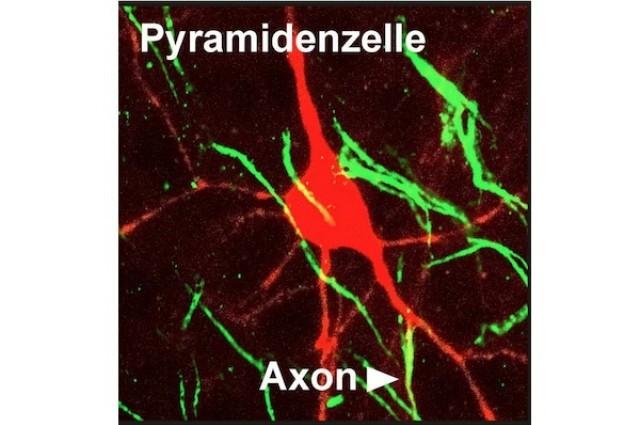 Novo formato de neurônio é descoberto