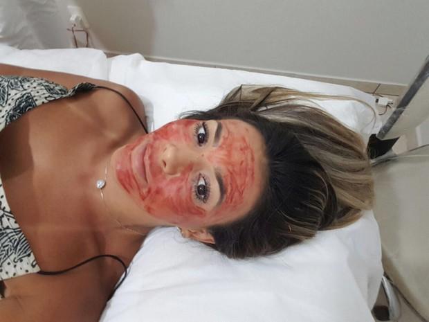 Ex-BBB Fabiana Teixeira aplica sangue no rosto (Foto: Arquivo Pessoal/Divulgação)