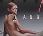Incitar anorexia pode dar prisão na França (BBC)