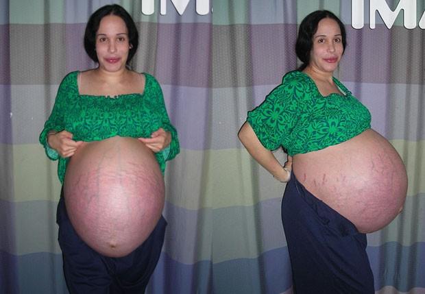 Nadya Suleman na reta final da gravidez, em 2009 (Foto: TMZ)
