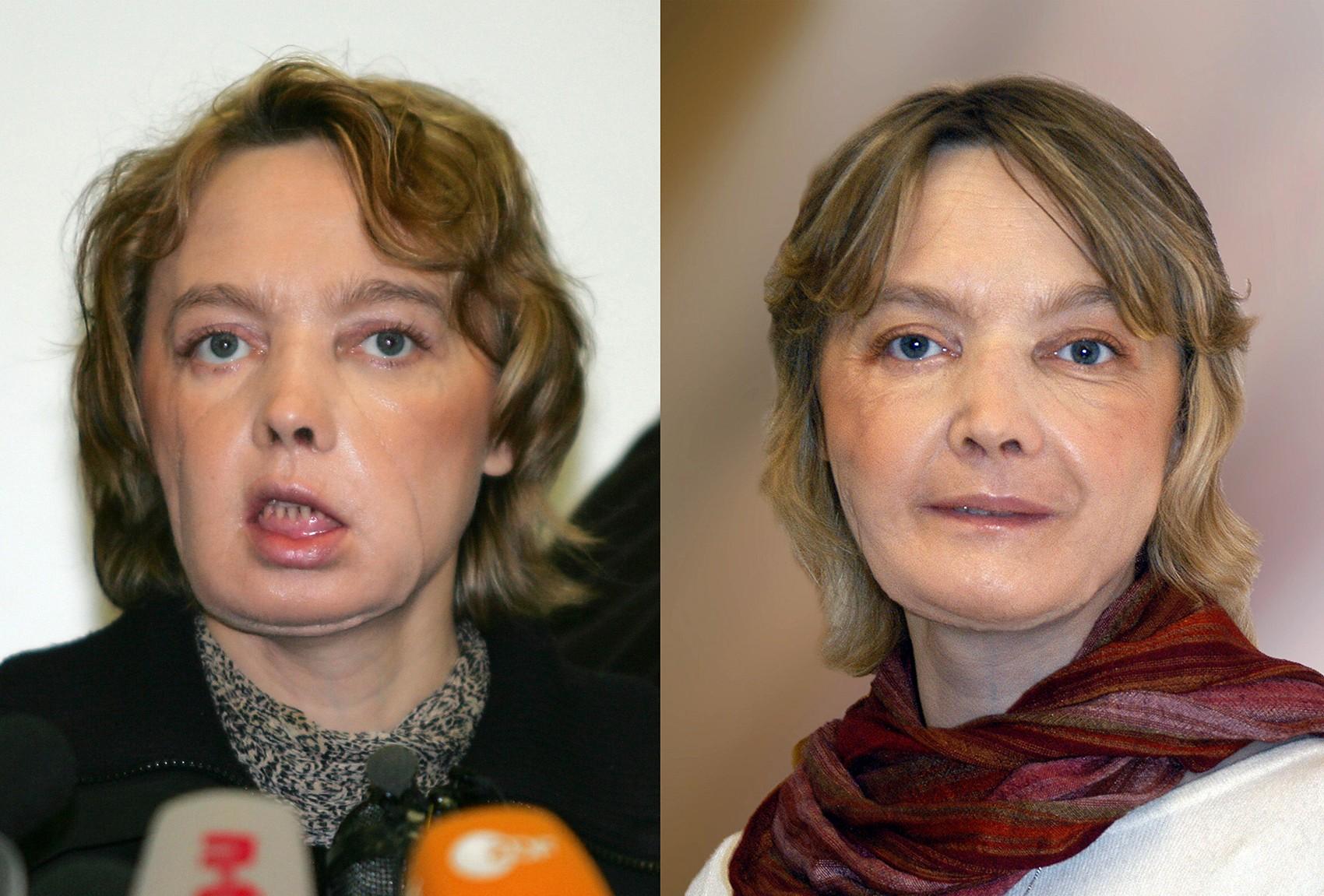 Fotos mostram Isabelle Dinoire em fevereiro de 2006 (esq.) e em novembro de 2006 (dir.), alguns meses depois sua cirurgia de transplante de face (Foto: DENIS CHARLET / AFP & CHU AMIENS / AFP)