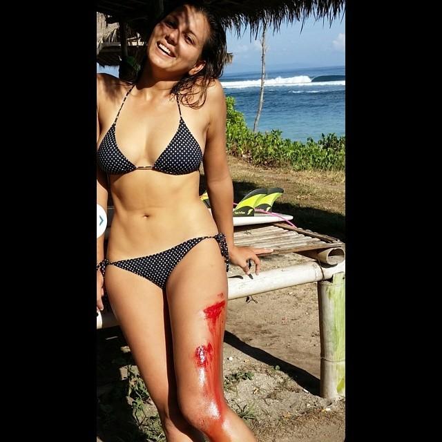 Maya Gabeira com a perna direita machucada (Foto: Reprodução/Facebook)