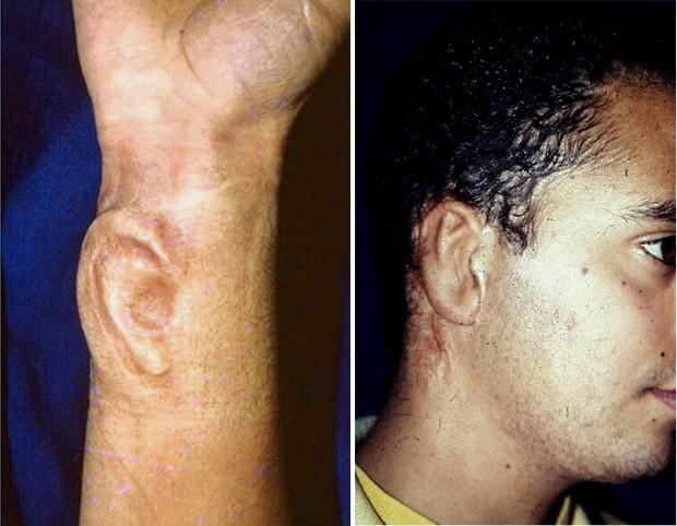 A imagem da esquerda mostra a cartilagem já integrada sob a pele do antebraço do paciente, dois meses após a colocação; a imagem da direita mostra o resultado final da reconstrução da orelha, dois meses após o transplante microcirúrgico da pele do braço para a face. (Foto: Julio Morais/Divulgação)