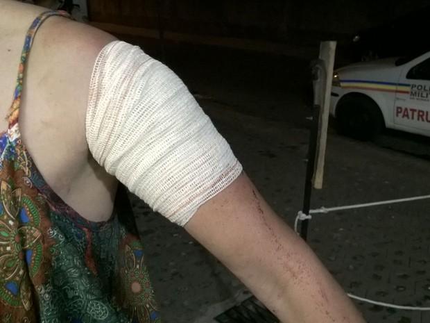Mulher sofreu corte profundo ao ser agredida por se recusar a pagar cobrança de flanelinha em Belo Horizonte (Foto: Leonardo Alvarenga/Arquivo pessoal)