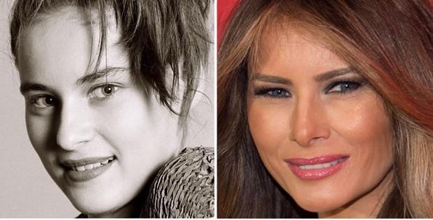 Melania Trump: antes e depois (Foto: Reprodução)
