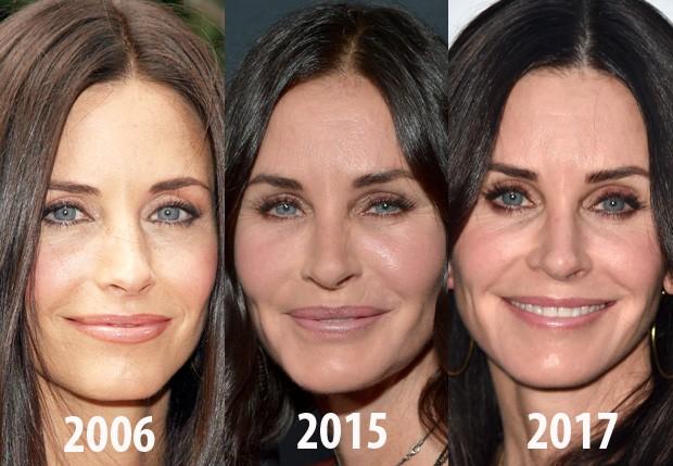 As mudanças no rosto de Courteney Cox com o passar dos anos (Foto: Getty Images)