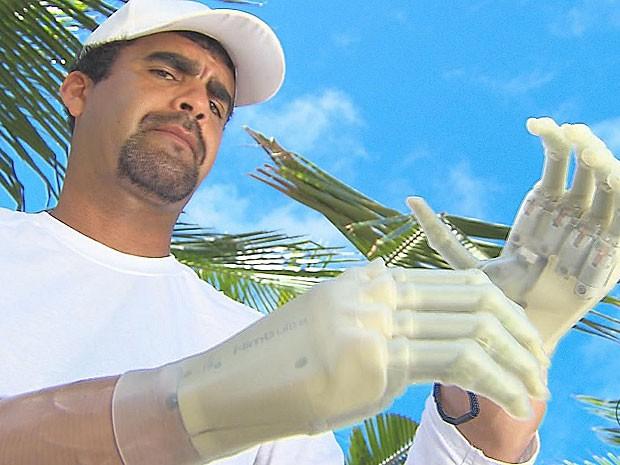 Surfista com prótese de mãos biônicas (Foto: Reprodução / TV Globo)