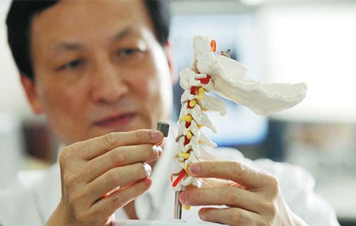 Primeira vértebra impressa em 3D foi implantada com sucesso em paciente com câncer na coluna (Reprodução/Forbes)