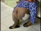 'Queria ter um Natal feliz', diz mulher que sofre com elefantíase em MG