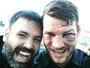 Michael Bisping recebe suspensão médica de seis meses após UFC 204