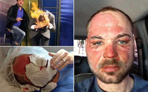 Ilusionista Wayne Houchin mostra seu rosto com as queimaduras sofridas durante gravação na República Dominicana (Foto: AP)