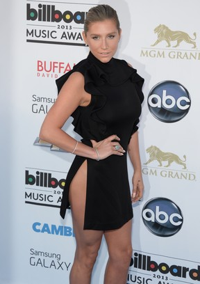 Kesha no Billboard Music Awards (Foto: Robyn Beck/ AFP)