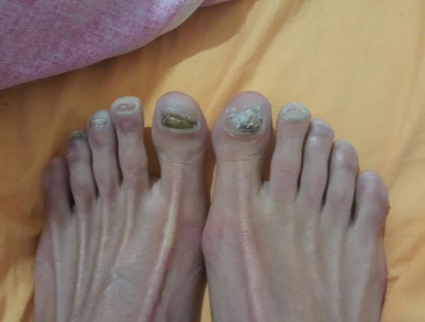 pés da triatleta Ariane Monticeli