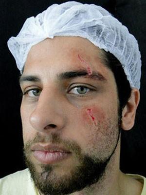 Rafael Lusvarghi e cicatriz (Foto: Divulgação / Arquivo pessoal)