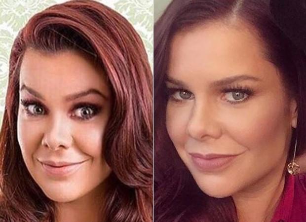 Fernanda Souza antes e depois da radiofrequência: o resultado é um rosto mais fino e com mais contornos  (Foto: Reprodução Instagram )