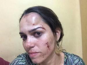 Lila teve lesões após ser atingida por uma garrafa (Foto: Lila Melo/Arquivo Pessoal)