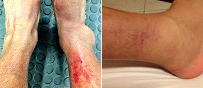 À esquerda, o tornozelo lesionado (Foto: Marcelo Régis/Arquivo Pessoal)