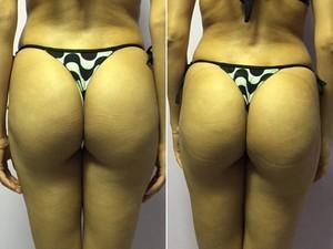 Os glúteos de Eva Di Marino antes e depois do pump glúteo (Foto: Mariucha Machado/G1)