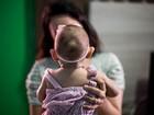 No RN, atendimento a crianças com microcefalia é tema de audiência